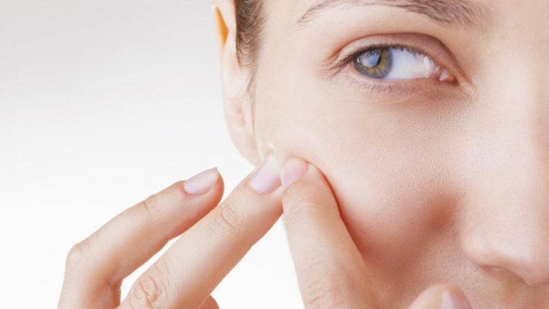 acne and sugar